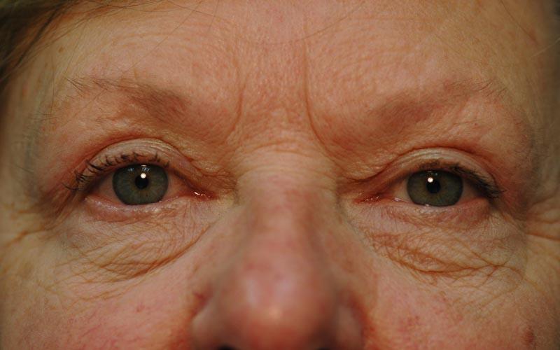 After – Total transformation after her upper lid Blepharoplasty.