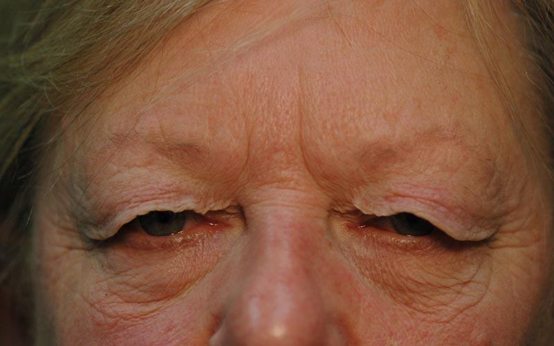 Before – This 67 year old woman has lid skin hanging over her eyelids.