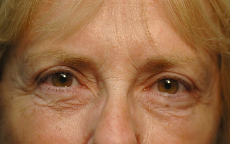 After – After upper lid Blepharoplasty she looks happier and more youthful.