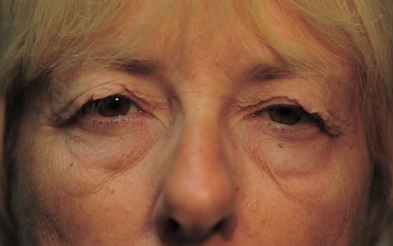 Before – This 69 year old woman has difficulty seeing due to excess upper lid skin from aging.