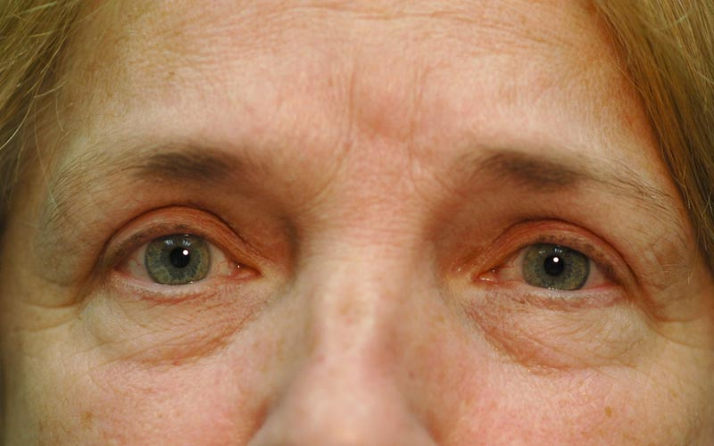 After – 2 months after upper lid blepharoplasty. Patient can now see clearly without having to elevate her eyebrows.