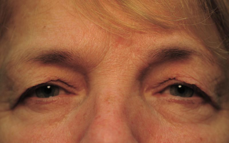 "Before – ""64 year old woman needs to raise her brow to see around her lid skin."""