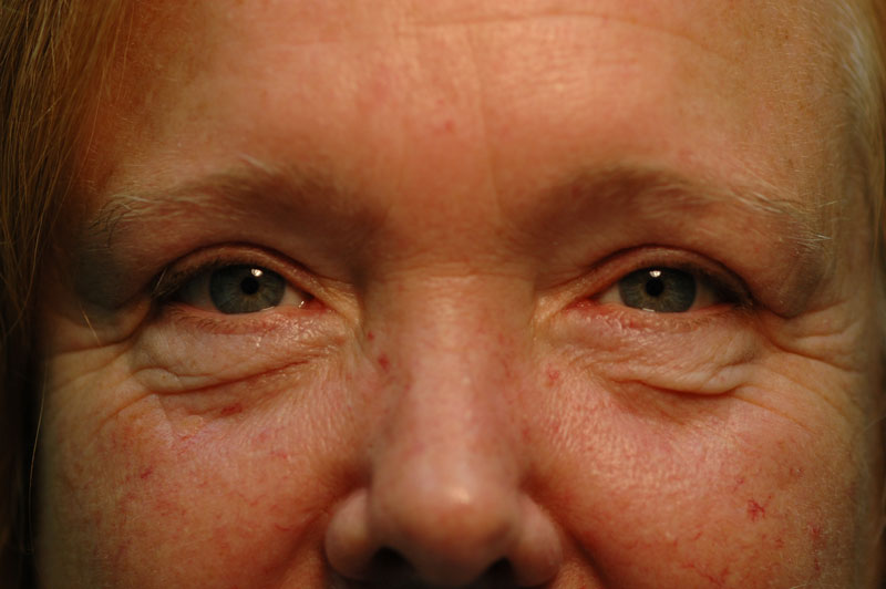 3 months after her upper lid Blepharoplasty, this patient looks more youthful and can see clearly.