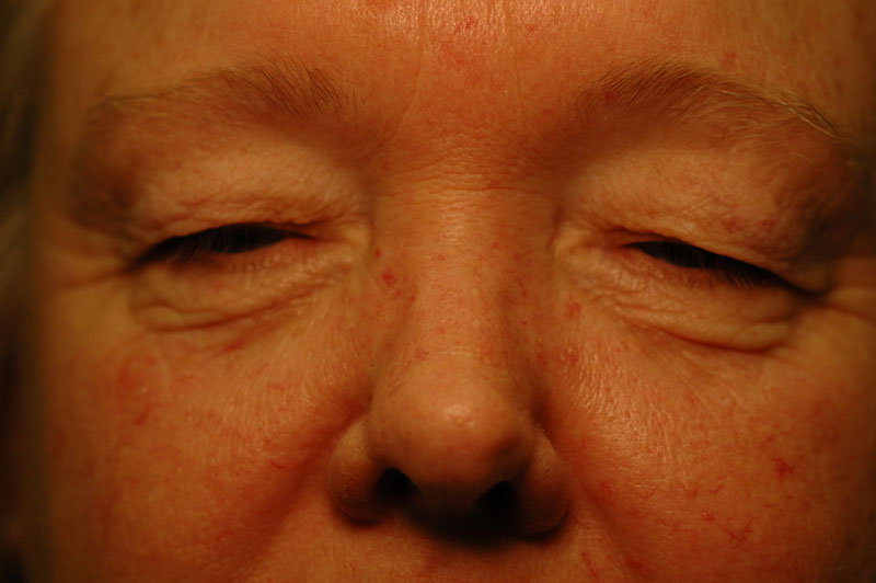 Before - This 55 year woman has excess lid skin impairing her vision and aging her.