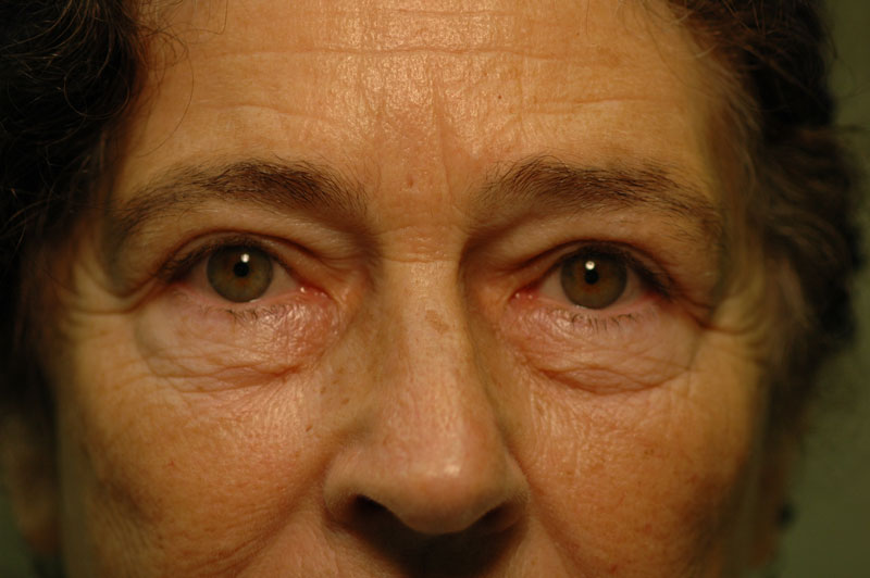 3 months after her Upper lid Blepharoplasty, this patient looks bright-eyed and rejuvenated.