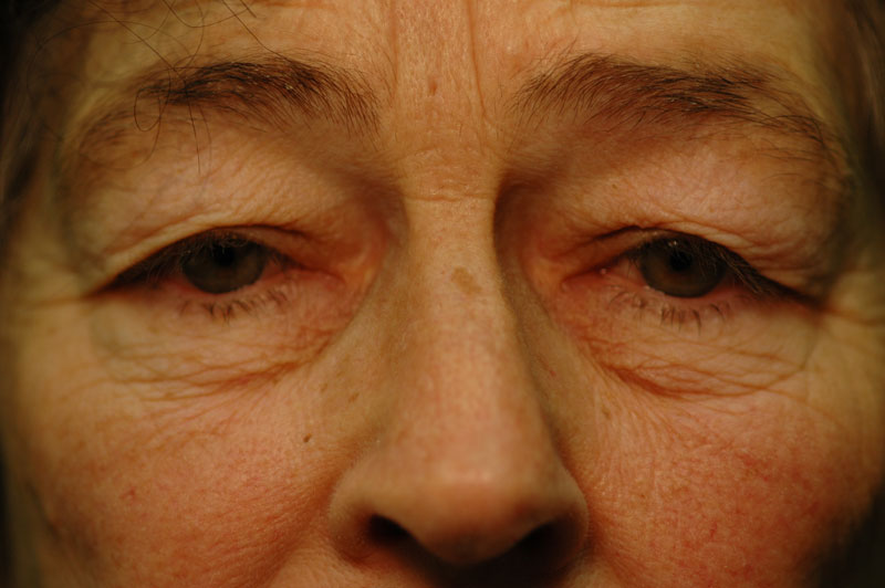 Before - The 67 year old patient looks tired due to her heavy eyelids.