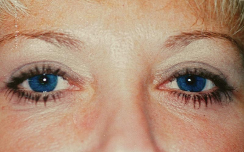 After - 3 months after 4 lid Blepharoplasty. The patient looks 10 years younger.