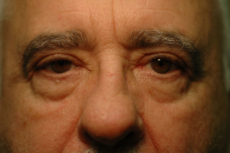 2 months after upper lid eyelid surgery, this patient's eyes have opened up allowing him to see more clearly.