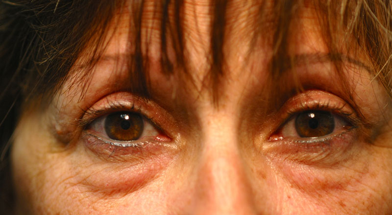 Three months after upper eyelid surgery, this patient is thrilled with her improved peripheral vision and her new youthful looking eyes.