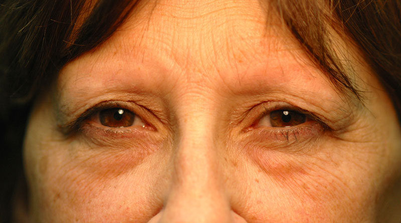 Before - This 58 year old woman was unhappy with her heavy upper lids.
