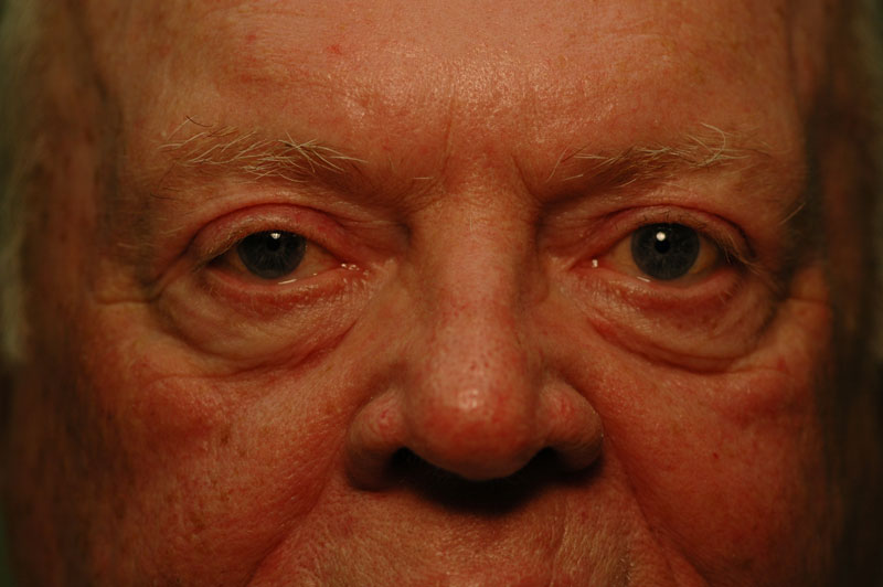 3 months after surgery, this patient is free from excess upper eyelid skin and is able to have clear vision.