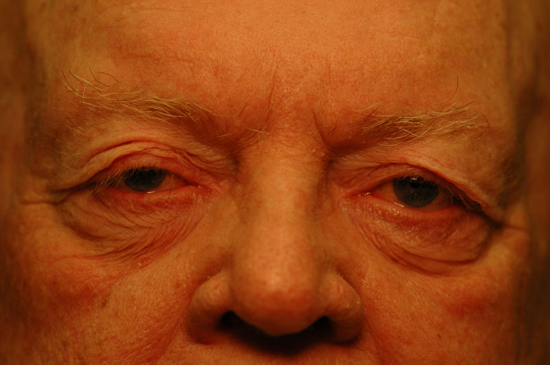 Before - This man suffers from impaired vision due to heavy, sagging upper eyelids.