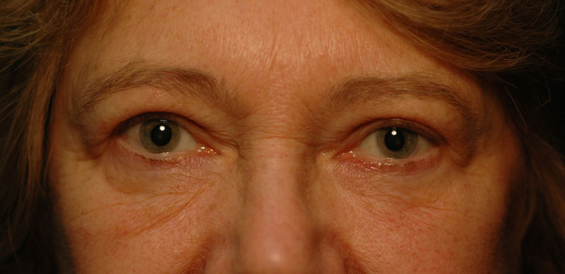 After upper eyelid surgery, this patient has a natural, bright-eyed look and now has restored peripheral vision.