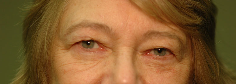 Before - This woman was unhappy with her heavy lids, which affected her peripheral vision.