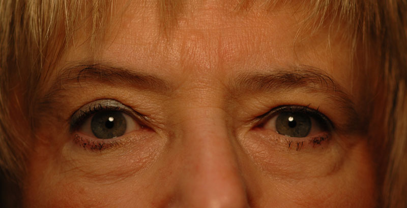 3 months after upper eyelid surgery, this woman's vision has been restored while taking years off her appearance.