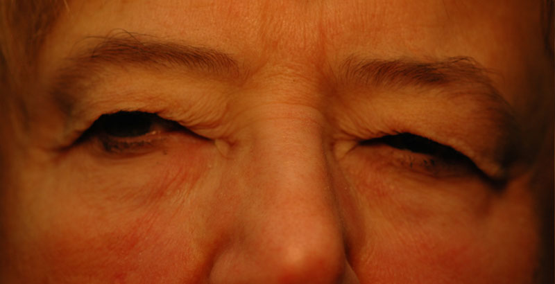 Before - This woman suffers from impaired vision due to excess eyelid skin.
