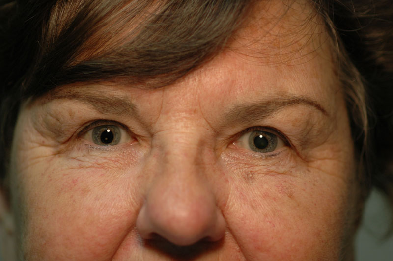 After upper eyelid surgery, this patient can see much more clearly and looks bright-eyed and alert.