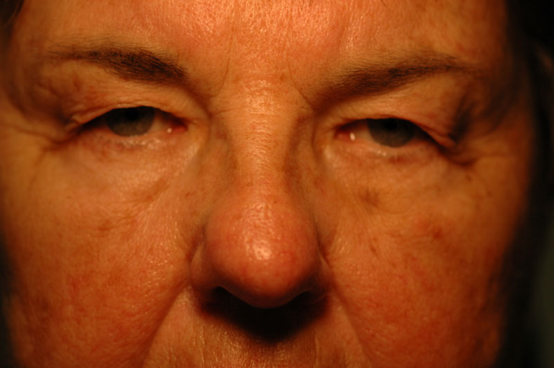 Before - This patient said that her heavy eyelids were disrupting her vision and impairing her ability to drive comfortably.