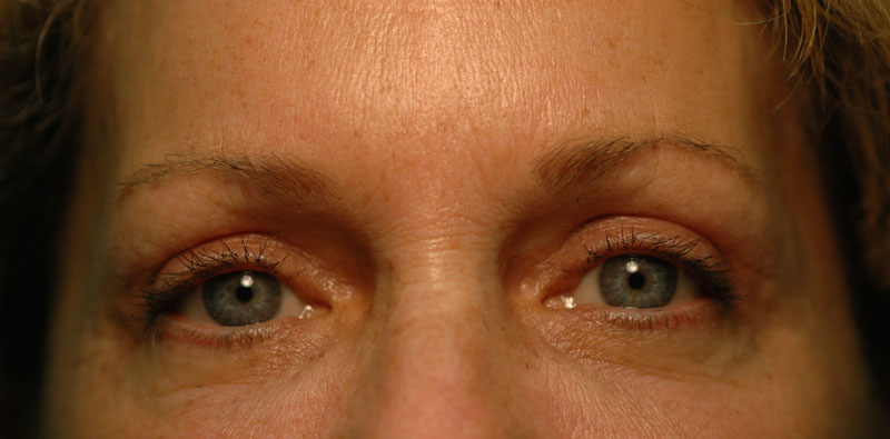 4 months after upper eyelid surgery, this patient looks refreshed and youthful. The surgery takes years off her appearance without looking unnatural.