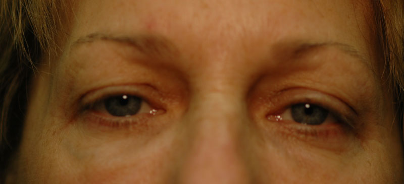 Before - This 58 year old woman felt that her eyelids caused her to look older and tired.