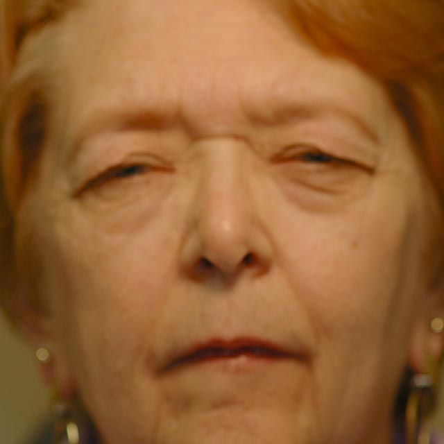 Before –74 year old female with excess upper lid skin obscuring her vision.