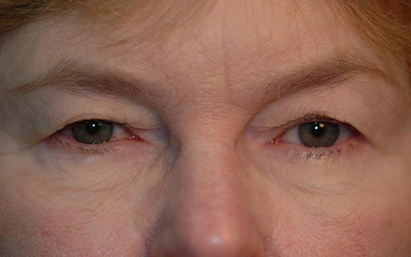 Before – 63 year old woman with heavy eyelids.
