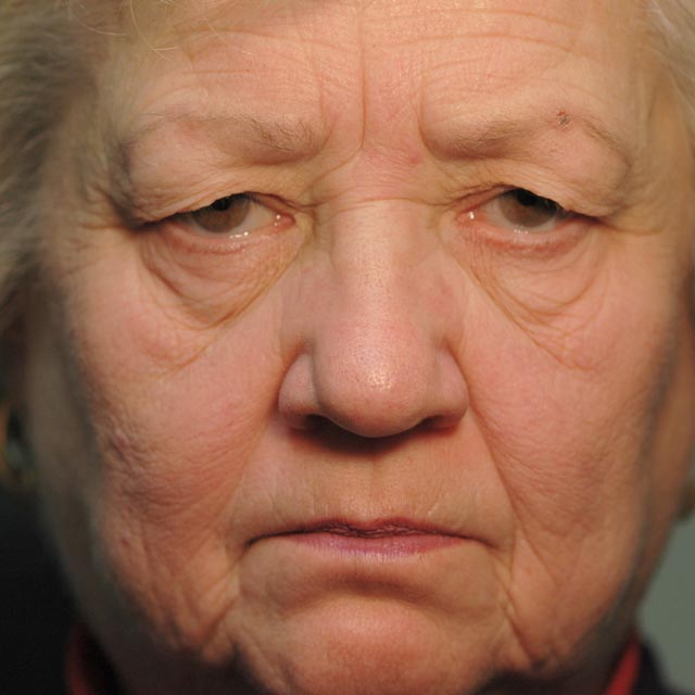 Before – 69 year old woman looking tired due to heavy upper lids.