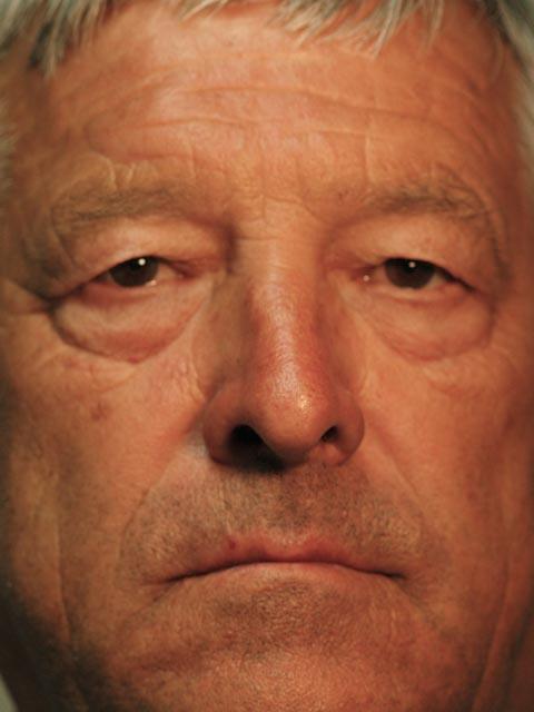 Before – Gentleman with excess eyelid skin both eyes.